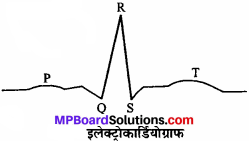 MP Board Class 11th Biology Solutions Chapter 18 शरीर द्रव तथा परिसंचरण - 7