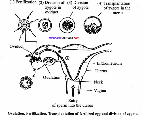 MP Board Class 12th Biology Important Questions Chapter 3 Human Reproduction 13
